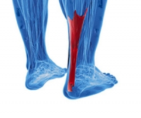 What Causes Achilles Tendonitis?