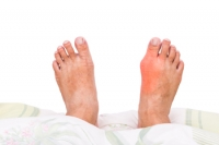 How Is Gout Diagnosed?