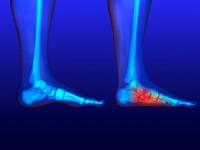 Flat Feet Symptoms and Causes
